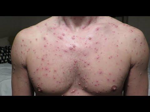 โรคอะไรสามารถจาก Giardia