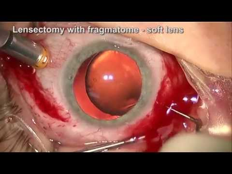 Vitrectomy Lensectomy and ACIOL for Ectopia Lentis in Marfan's Syndrome