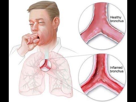 Video bronchitis 085643259500, penyakit bronkitis