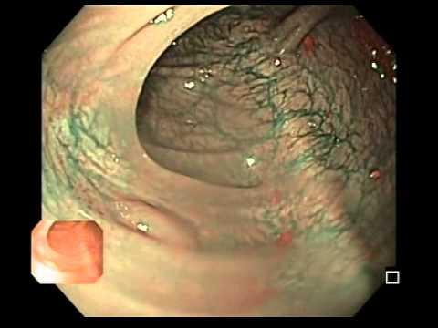 Hiperplastyczny polip okrężnicy