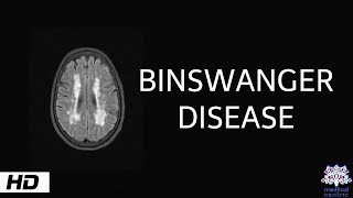 Binswanger disease, Causes , Signs and Symptoms, Diagnosis and Treatment.