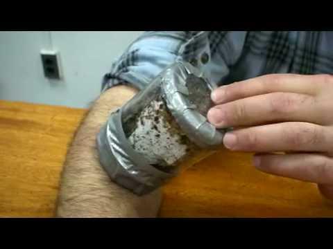 Enterobiosis diagnózis