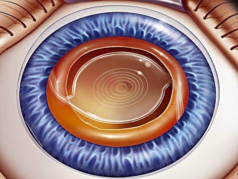 Упражнения для глаз при близорукости с фото