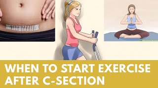 When to exercise or join gym after C-Section