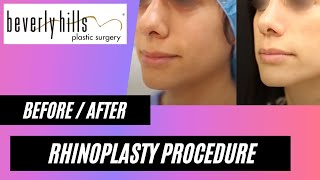Rhinoplasty: before / after