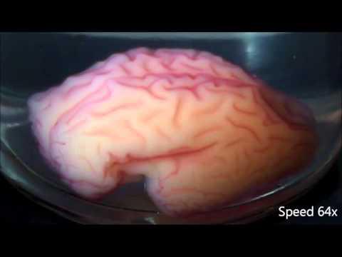 New research replicates a folding human brain in 3D