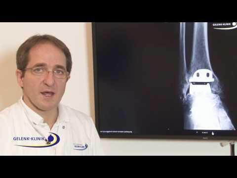 Penza Radiographie Gelenke