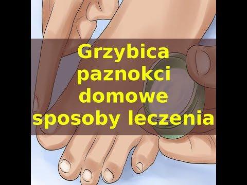Oparzenia łuszczyca