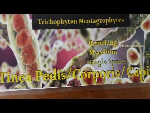 Come trattare croste a dermatite atopic