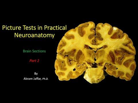 Neuroanatomia przekrojowa mózgu część 2