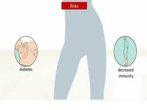Scheidenpilz Infektion - Was ist das und wie wird es behandelt?