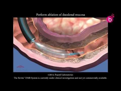 Une analyse de sang avec une charge dinsuline