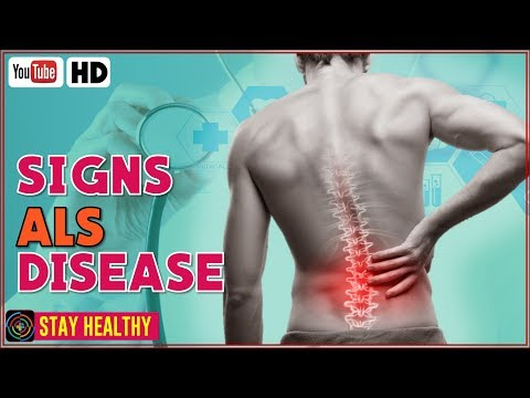 Video ALS Disease - Amyotrophic Lateral Sclerosis  Signs and Symptoms You Should Know
