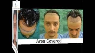 High Density FUE Hair Transplant India, Agra, Delhi, Pune, Sikkim, Siliguri, Jaipur, Dubai, Nepal.