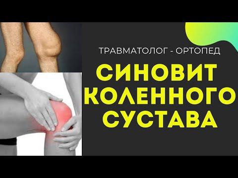 Синовит Коленного Сустава? Пункция  коленного Сустава! Лечение Синовита!