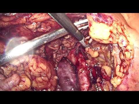 Papillomavírus elváltozása és terhesség