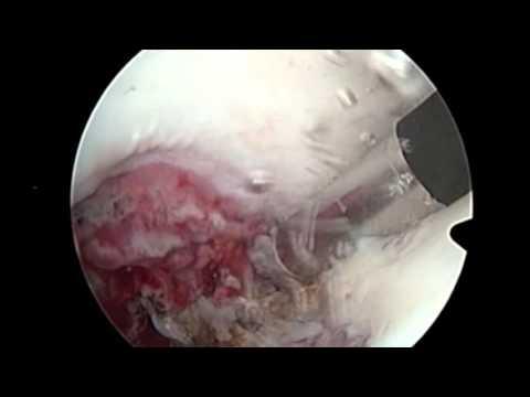Tratamentul osteoartrozei tuturor articulațiilor