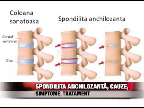 Tratament articular Lago-Naki