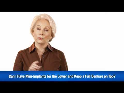Mini-Dental Implants Spokesmodel Video Demo Reel