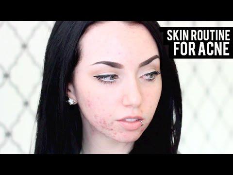 Die Sanierung der Poren der Person