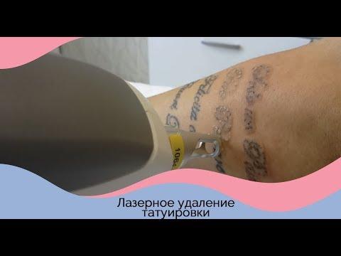 Мази и крема пигментные пятна на лице