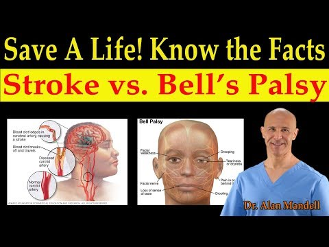 Download Save A Life!  Know The Facts Of Stroke Vs. Bell's Palsy (Natural Remedies)  - Dr. Alan Mandell, D.C. HD Mp4 3GP Video and MP3