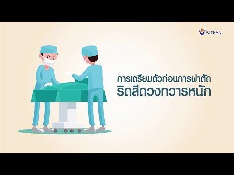 ครีมจาก thrombophlebitis ของการเป็นแผลเลือดไหล