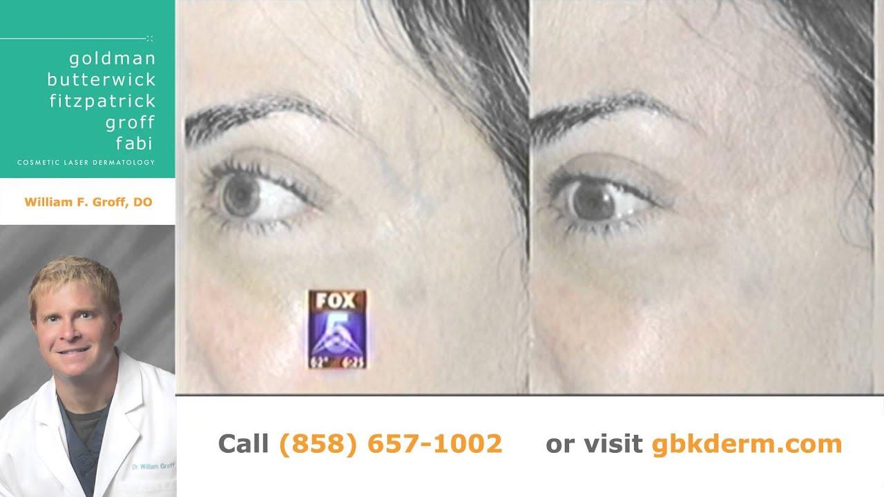 Vein Treatments San Diego, CA | Cosmetic Laser Dermatology