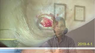 Chinese Medicine Study - Skin ulcer healed by herbal medicine 20190509