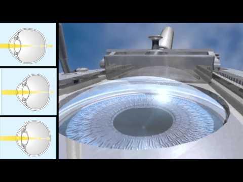 A ciszták hatása a látásra