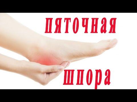 Was ist Bauchspeicheldrüsen Hypertonie