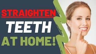 Straighten Your Teeth At Home NATURALLY   Dentist UPDATED (2021)