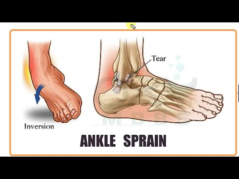Duzzadt láb- és ízületi fájdalom