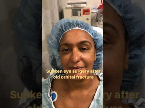 Sunken Eye Surgery