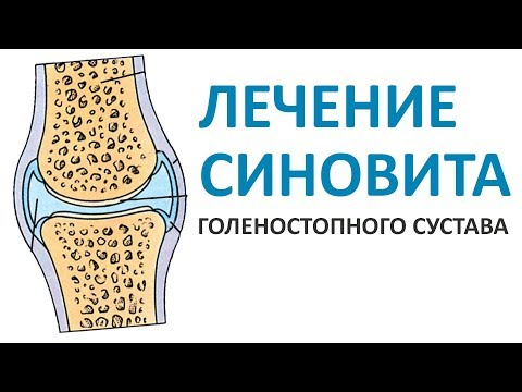 Синовит голеностопного сустава: как справиться с болезнью?