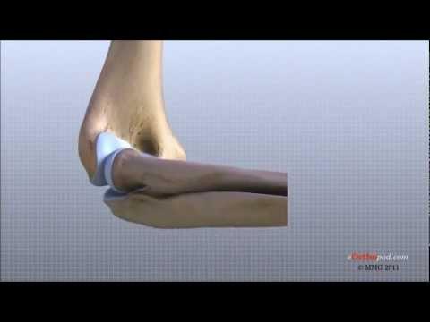 El costo de la cirugía de cadera en Kharkov