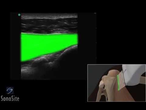 Dolore nel video lombare della colonna vertebrale trattamento