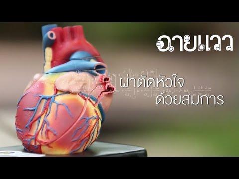 ผ่าตัดหลอดเลือดในอูฟา RCH