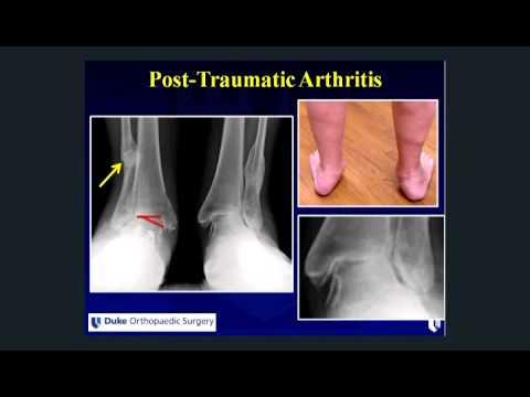 Behandlung der Beine und Gelenke