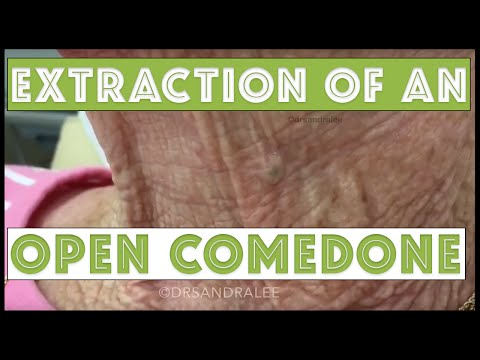 One open blackhead