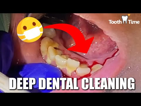 Dental Cleaning in New Braunfels: Tooth Time Family Dentistry