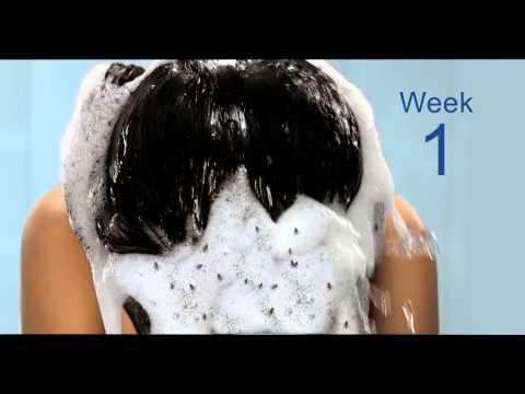Kapag shampooing ang buhok ay bumaba grupo