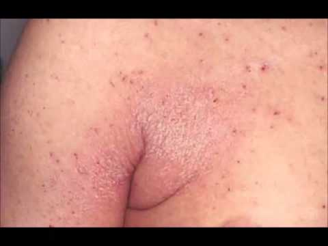 Video Obat Herbal Scabies