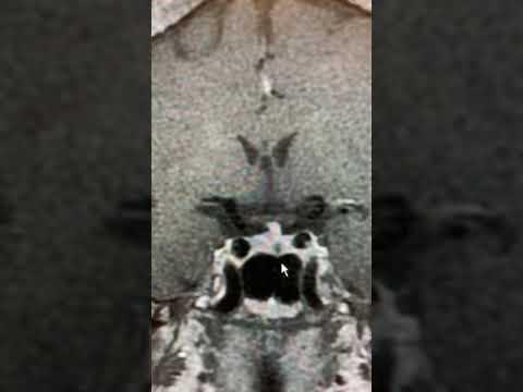 A könyökízület artrózisa 1 fok