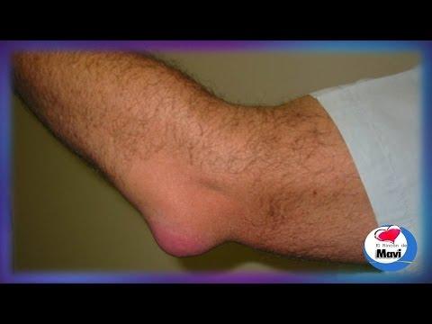 Cambiar los meniscos de la articulación de la rodilla