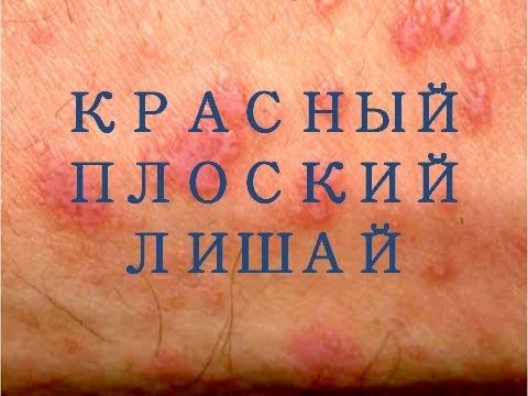 Пигментные пятна на коже убрать