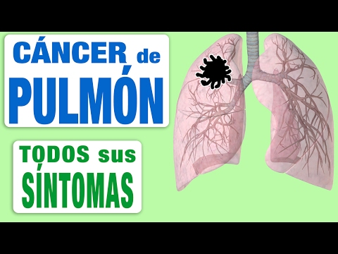 Cancer de pancreas que lo origina