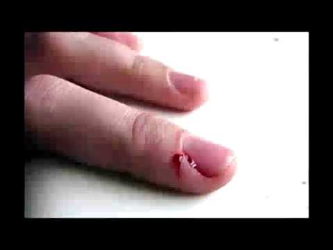 Como tratar las uñas del hongo
