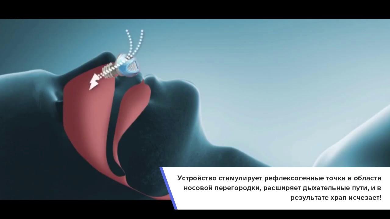 Видео Snorest