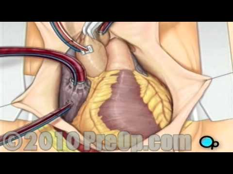 Total Hip Replacement Educational Video
